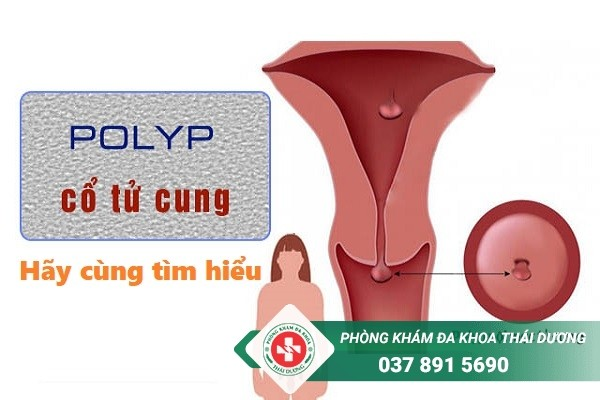 Địa chỉ chữa trị bệnh polyp cổ tử cung ở Biên Hòa uy tín và hiệu quả