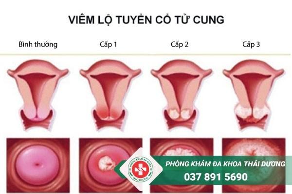 Viêm lộ tuyến cổ tử cung là một căn bệnh phụ khoa thường gặp ở nữ giới