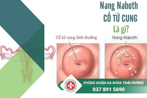 Địa chỉ chữa trị bệnh nang naboth cổ tử cung ở Biên Hòa uy tín
