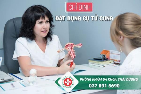 Chỉ định đặt dụng cụ tử cung