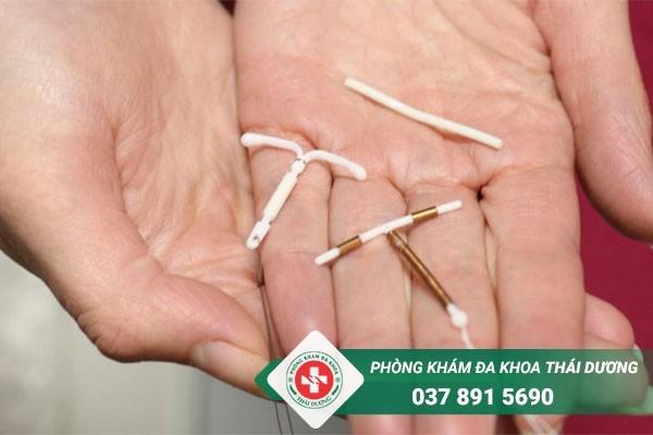 Đặt vòng tránh thai là phương pháp ngừa thai rất phổ biến