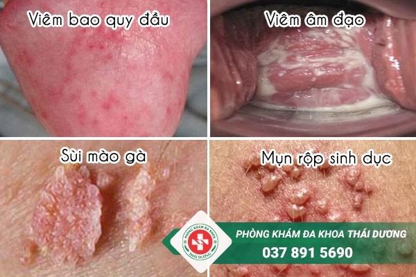 Ngứa vùng kín có thể là dấu hiệu của nhiều bệnh nguy hiểm